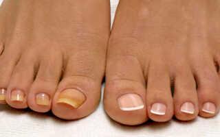 Эффективные способы лечения грибка ногтя на ноге