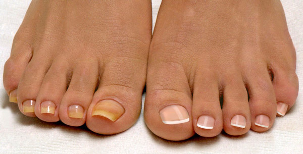 Грибок ногтя на большом пальце ноги лечение